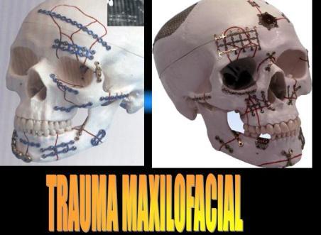 tx-maxilofacial.JPG