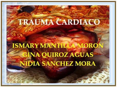 tx-cardiaco.jpg